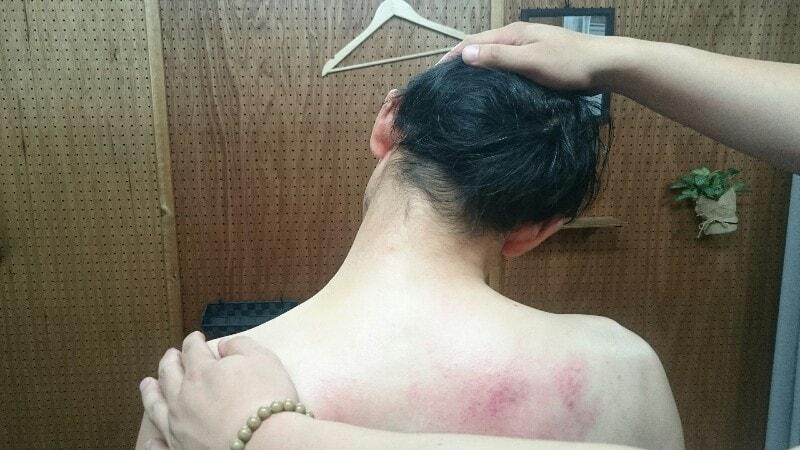 整骨院で治療を受けた時の写真:首